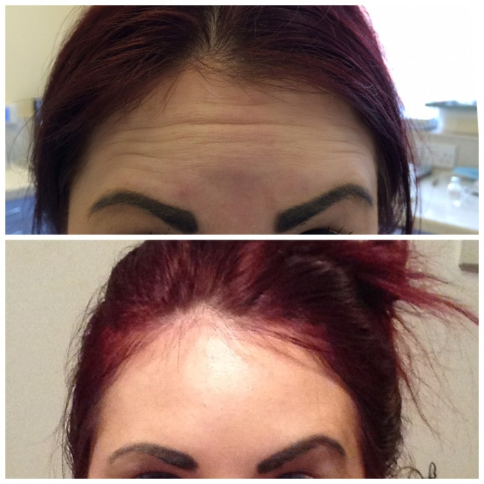 antiwrinkle treatment using botox
