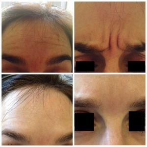 anti wrinkle treatment before and after