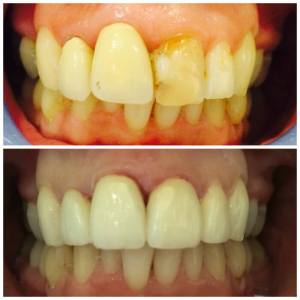smile case before and after