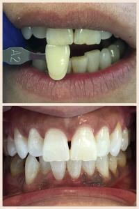 Case of Enlighten Whitening
