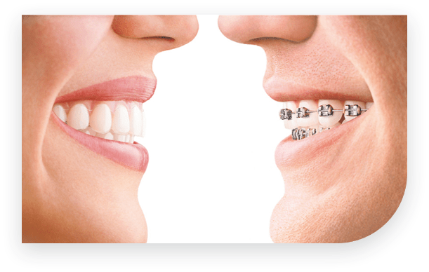 Invisalign offer teeth straightening with nearly invisible braces.