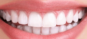 Case after teeth whitening