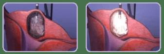 fibroids graphic