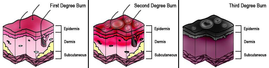 Burn Diagram