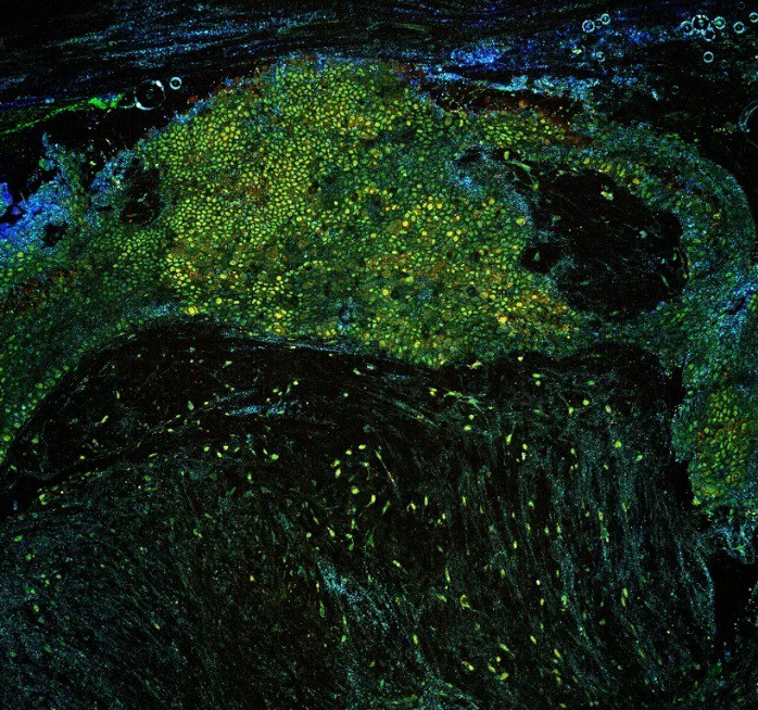 Optical biopsies for the detection of cancer.