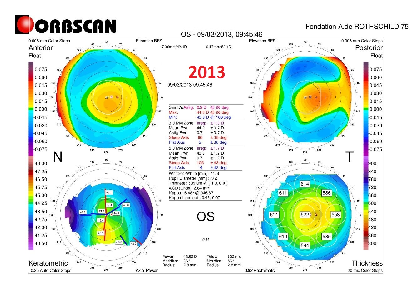 ORBSCAN LEFT EYE CASE3