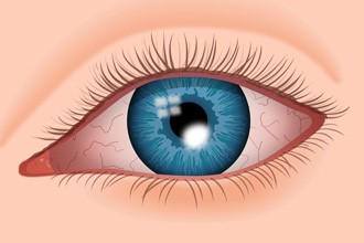 The Dangers of Eye Rubbing | Defeat Keratoconus
