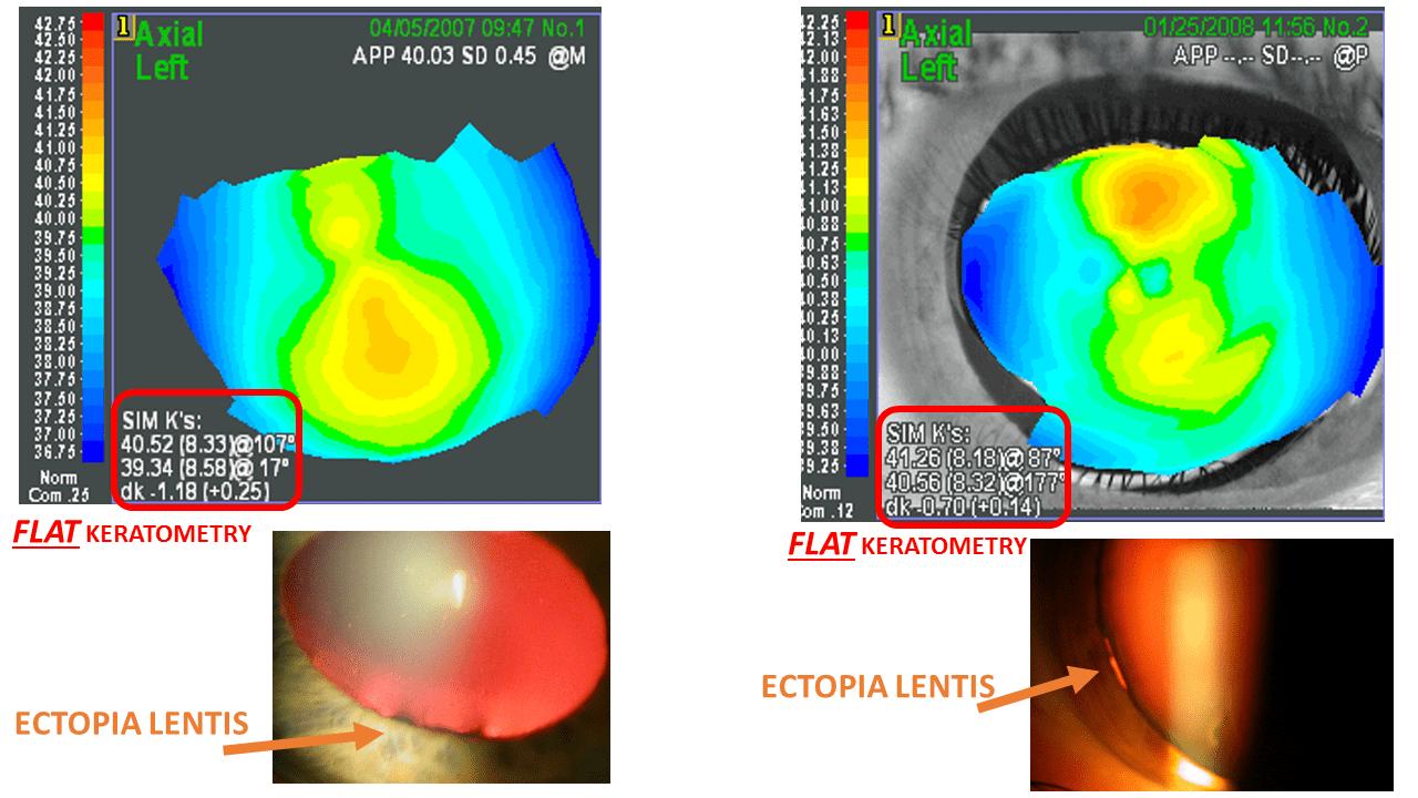 marfan flat keratometry defeatkeratoconus.com gatinel