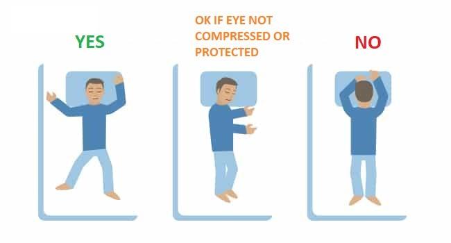 How To Avoid Rubbing Your Eyes Defeat Keratoconus