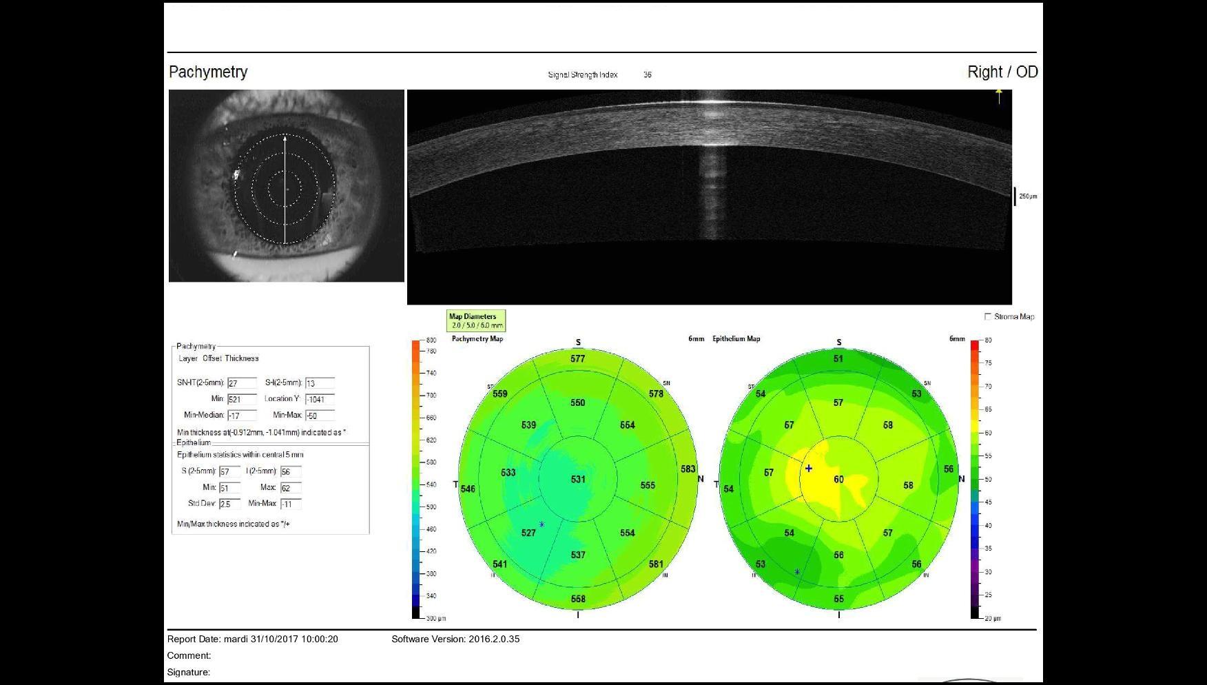 high resolution OCT corneal map