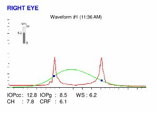 ocular response analyzer map of a keratoconus eye