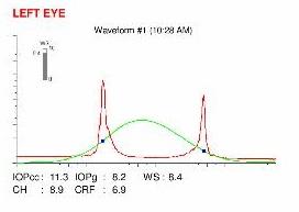 Ocular Response Analyzer map (ORA)