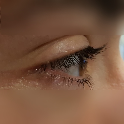 right eye profile of a patient with keratoconus