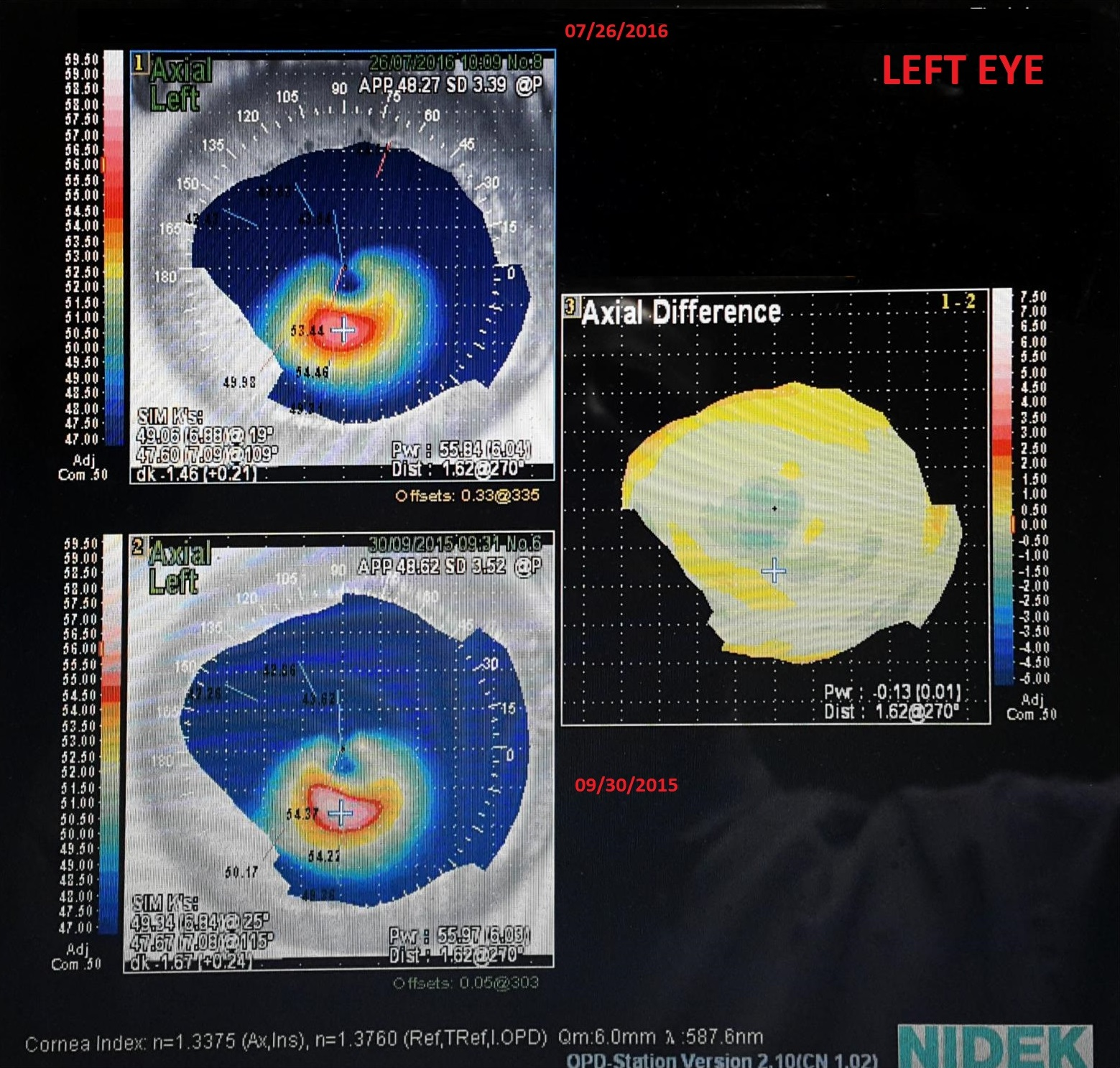 difference map showing the absence of progression of a keratoconus on the left eye