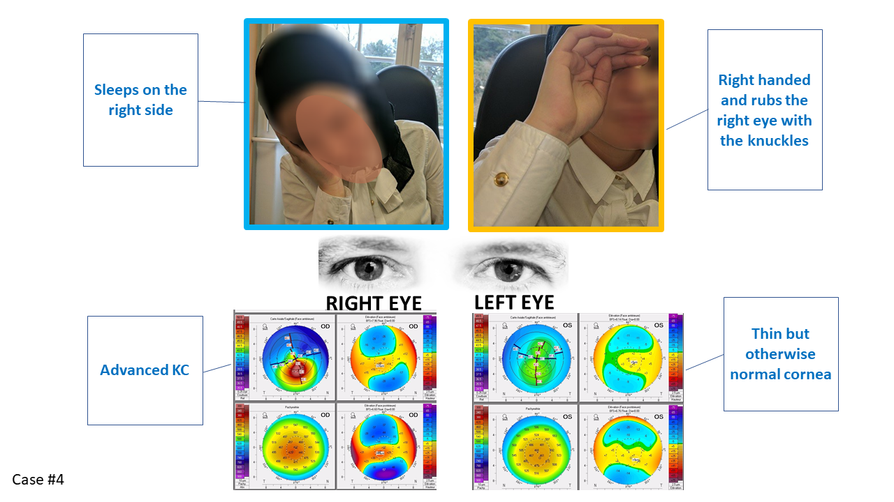 unilateral keratoconus on the right side, picture of eye rubbing and sleeping position