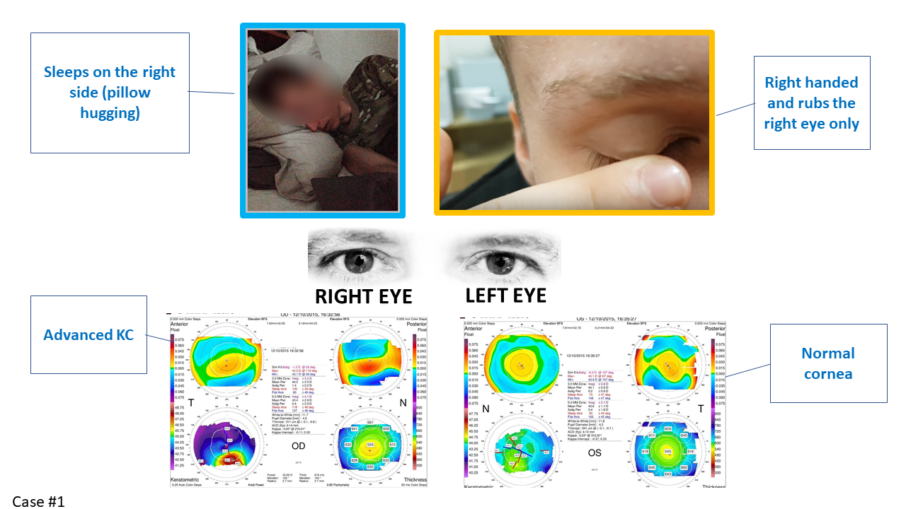 keratoconus more pronounced on the right side, picture of eye rubbing and sleeping position
