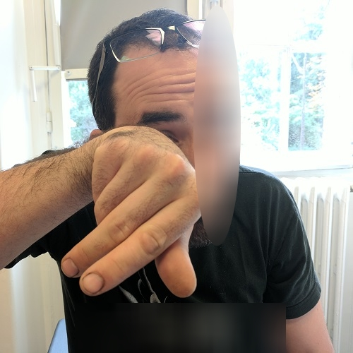 Photo of a patient with keratoconus rubbing his right eye
