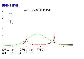 Ocular response analyzer map of an eye with post LASIK ectasia