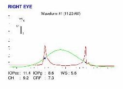 ocular response analyzer examinatino
