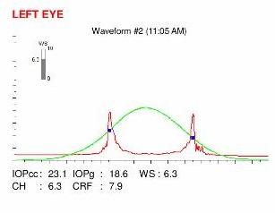 ocular response analyzer examination in an eye with post LASIK ectasia