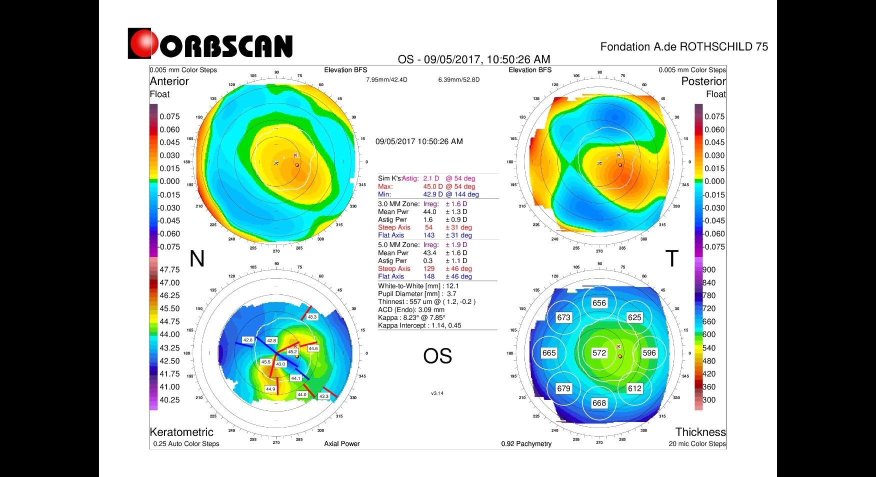 Orbscan corneal topography map.