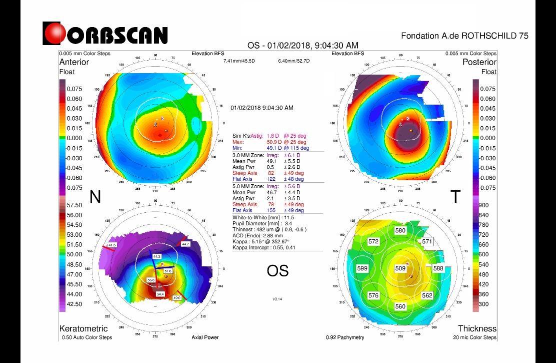 Orbscan map, keratoconus,