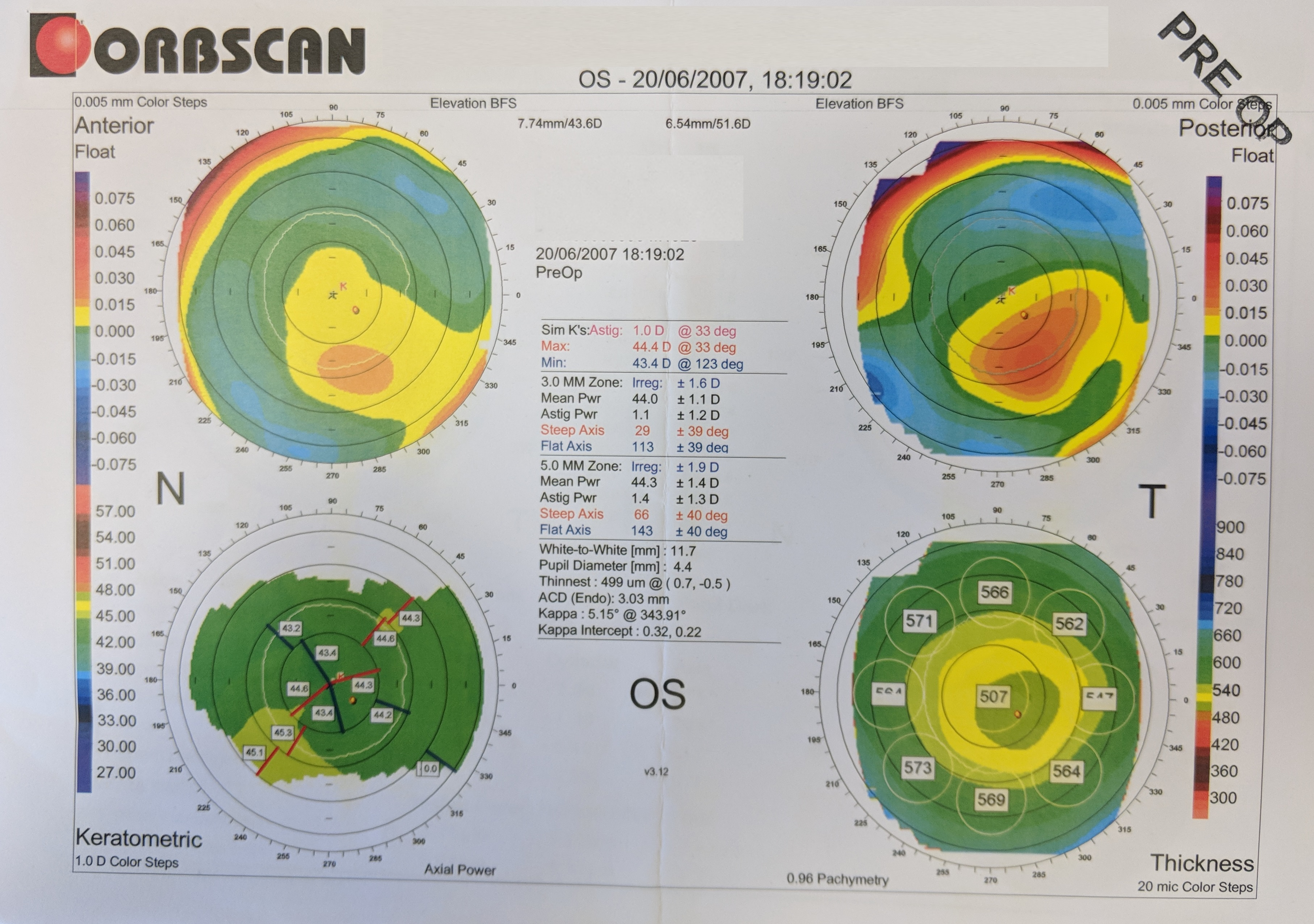 Orbscan map, preopertive