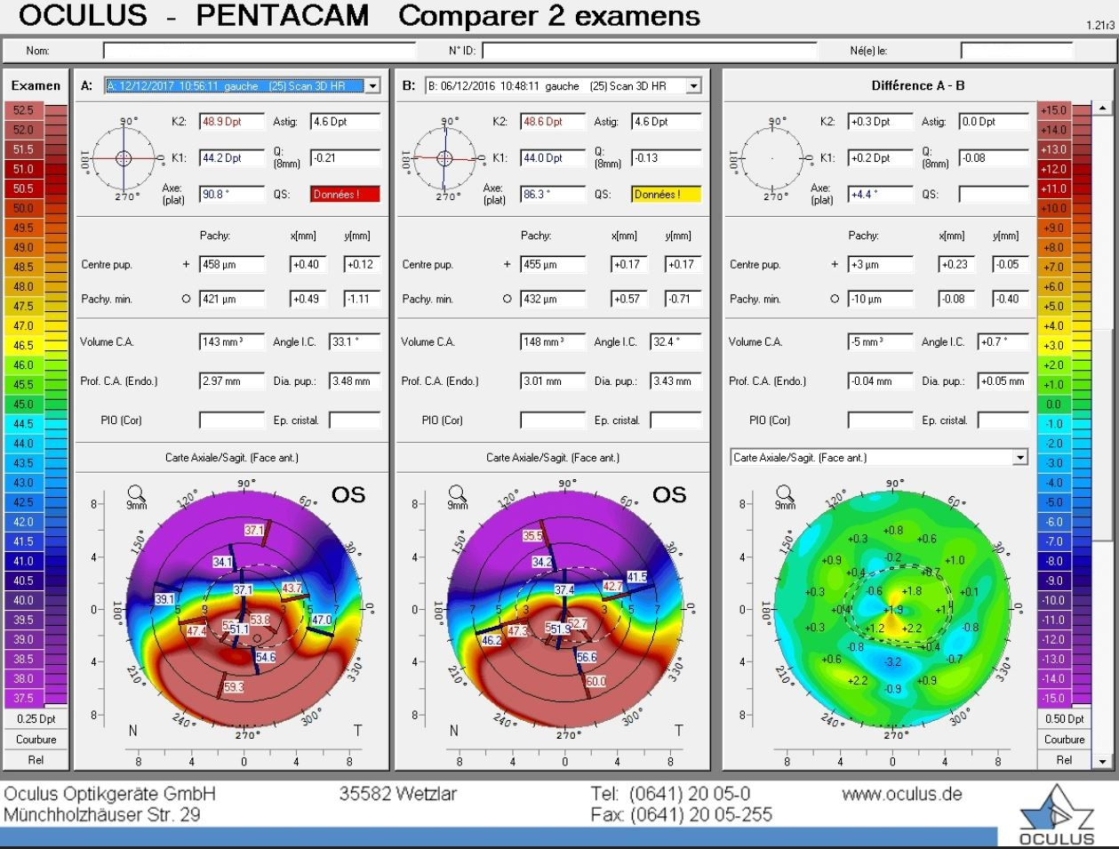 difference map post LASIK ectasia