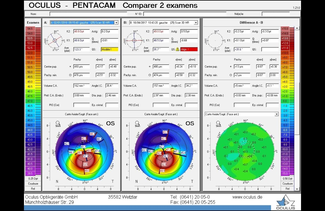 Pentacam map, difference map
