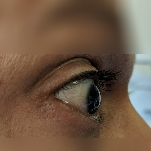 Corneal ectasia on right eye