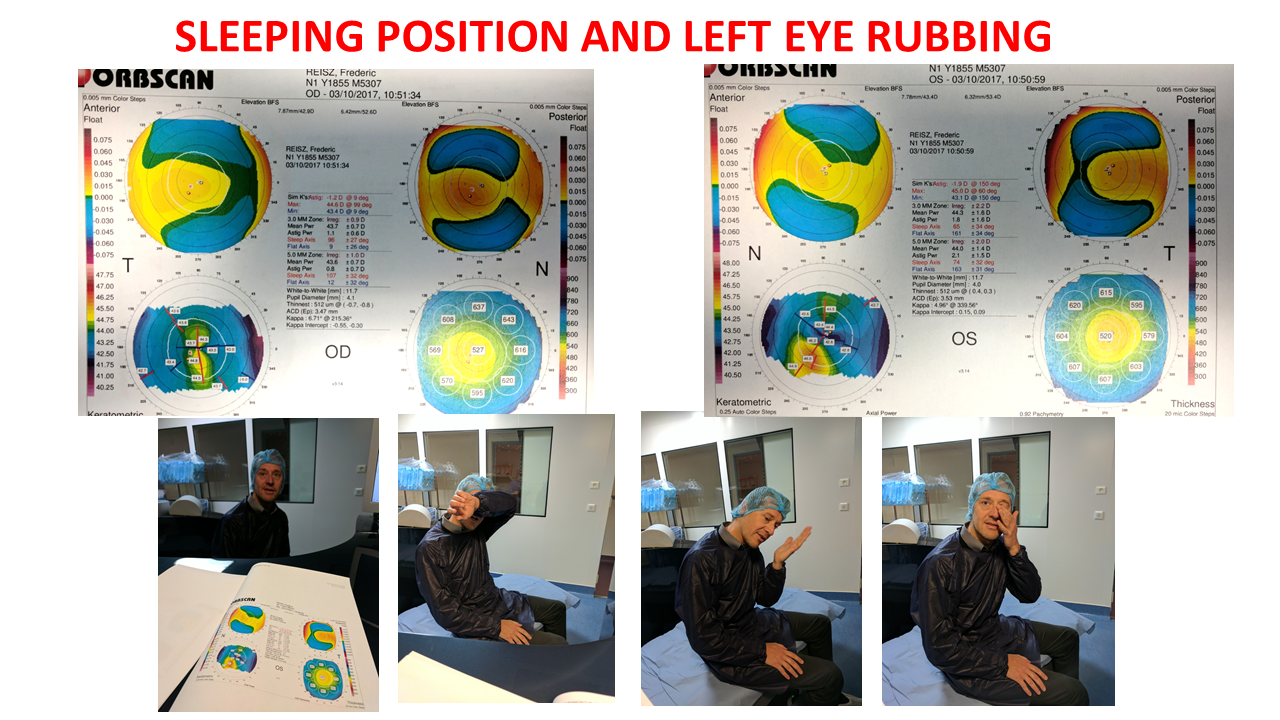 topography of the cornea patient rubbing his eyes