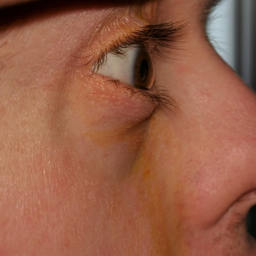 eye profile and blepharitis in a patient