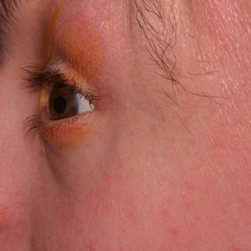 left eye profile in a patient with keratoconus