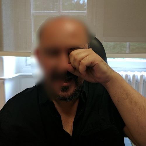 patient describing eye rubbing