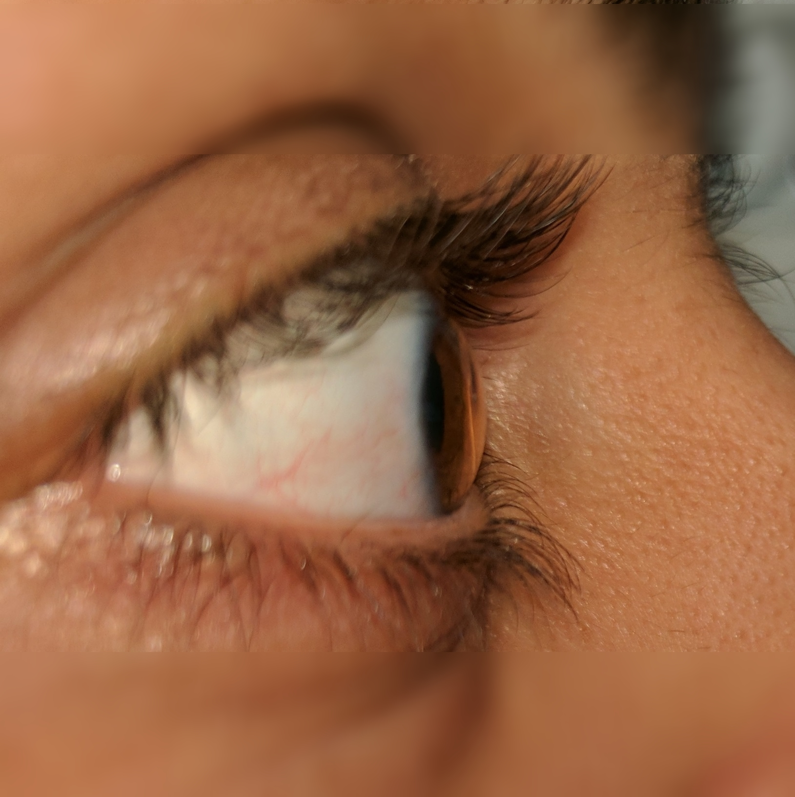 corneal profile
