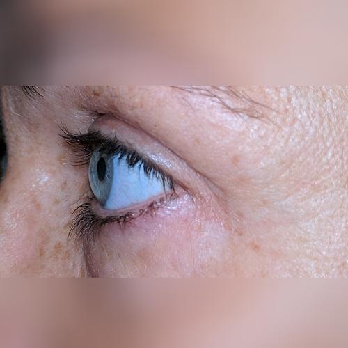 profile of an eye with post LASIK corneal ectasia