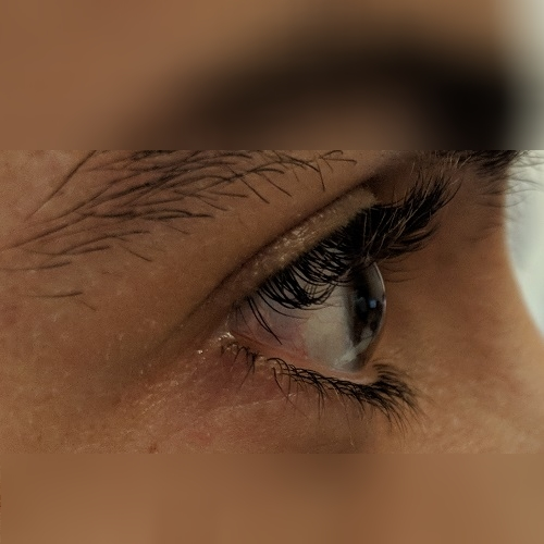 photo of the profile of the right eye of the patient