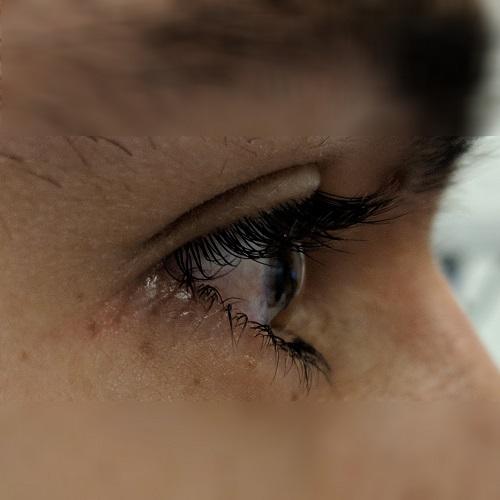 right eye corneal profile