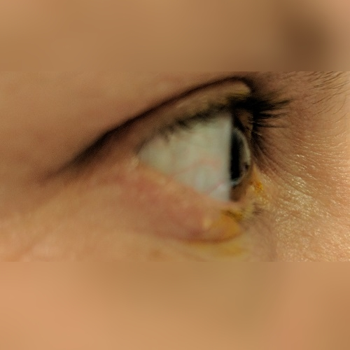 right eye profile