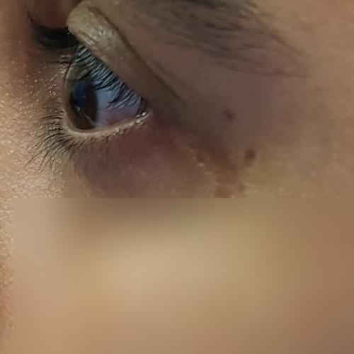 Profile of the left cornea of an eye with keratoconus