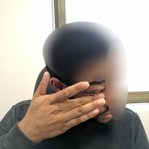 photo of a patient who rubs his eye