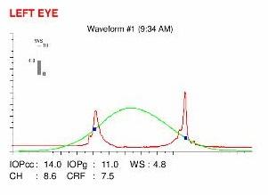 ocular response analyzer map