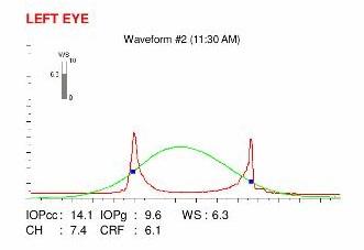 ora ocular response analyzer