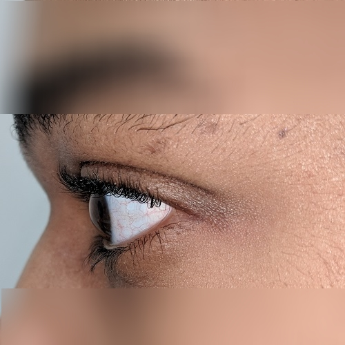 photo of the left eye of a patient with keratoconus
