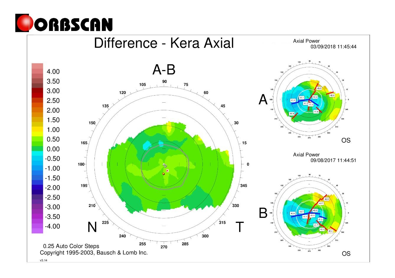orbscan difference map