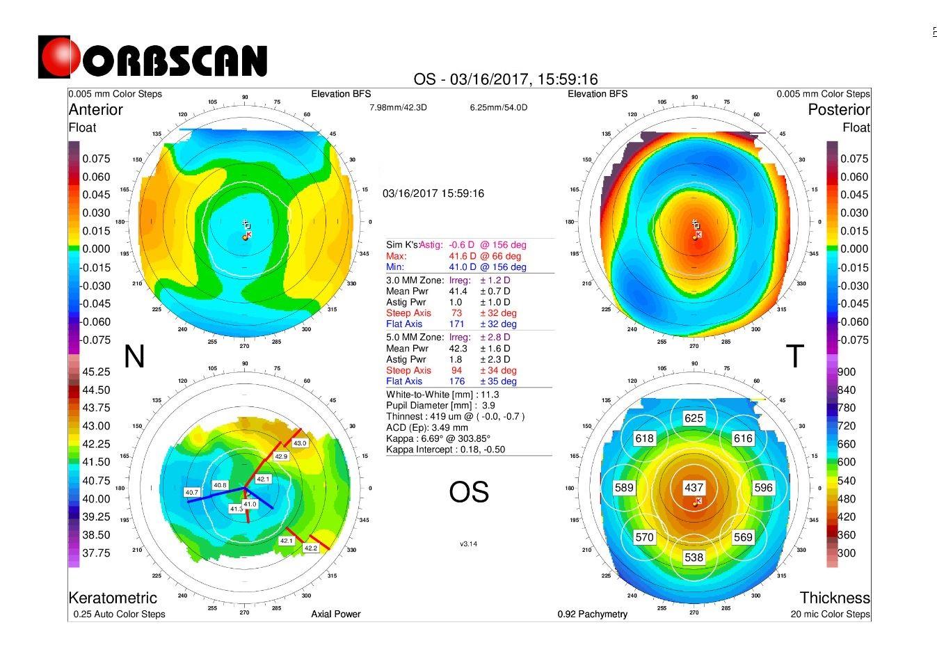 post LASIK topography profile cornea