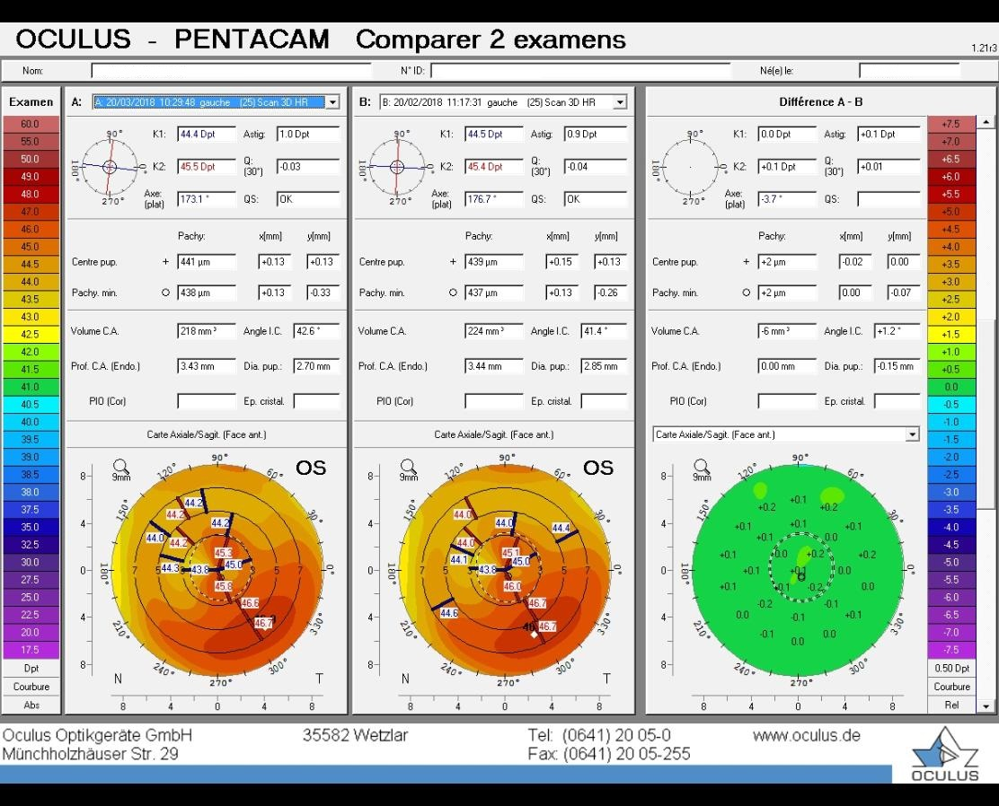 difference map, pentacam, stable, post PRK ectasia