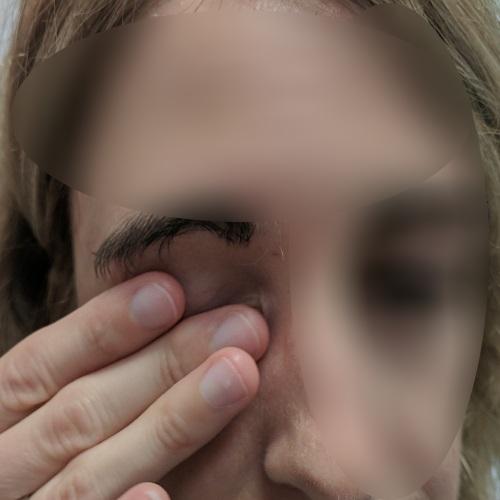 eye rubbing of the left eye, post LASIK ectasia
