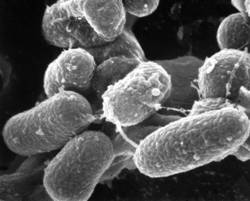tampak dekat bakteri paratuberculosis