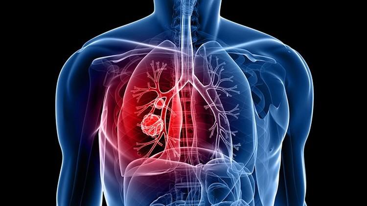 Bahaya Asbes Bagi Kesehatan Keluarga